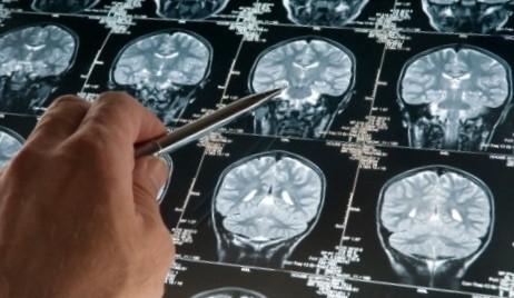 Keď telo prestane počúvať, čo mozog hovorí