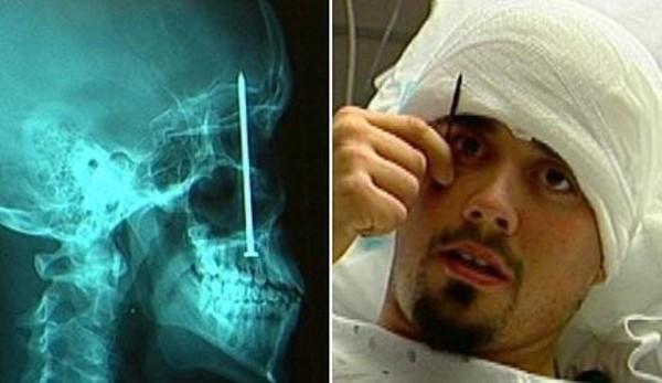 Na röntgenových snímkach sa dá nájsť všeličo. Ale toto …