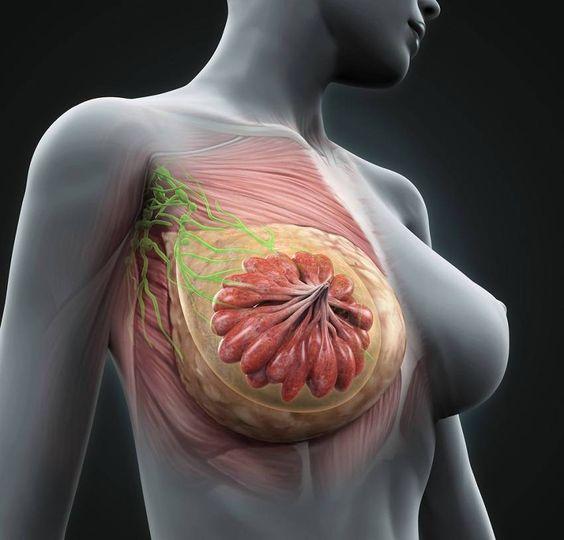6 príznakov, ktoré môžu znamenať rakovinu prsníka. A hrčka to nie je!