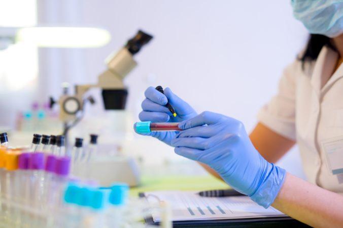 Vedci z Austrálie vyvinuli krvný test na detekciu melanómu, odhalí ranné štádium rakoviny kože